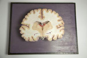 1096_Model de tall transversal de cervell